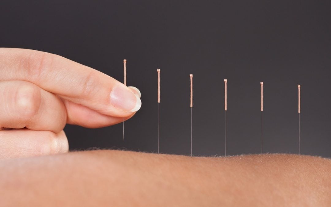 Could Acupuncture Work For You?